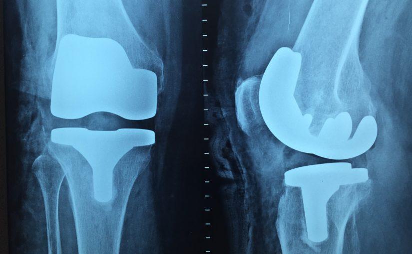 Artroskopia jednym z ważniejszych badań.